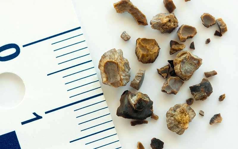 kidney stones risk factors